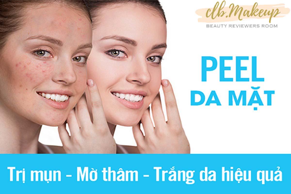 Phương pháp peel da sẽ mang lại hiệu quả trị thâm mụn nhanh hơn các phương pháp tự nhiên thông thường