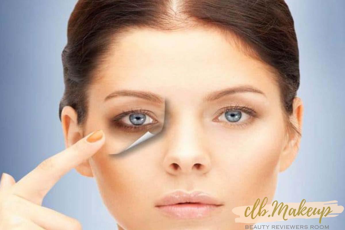 Phẫu thuật trị thâm vùng quanh mắt