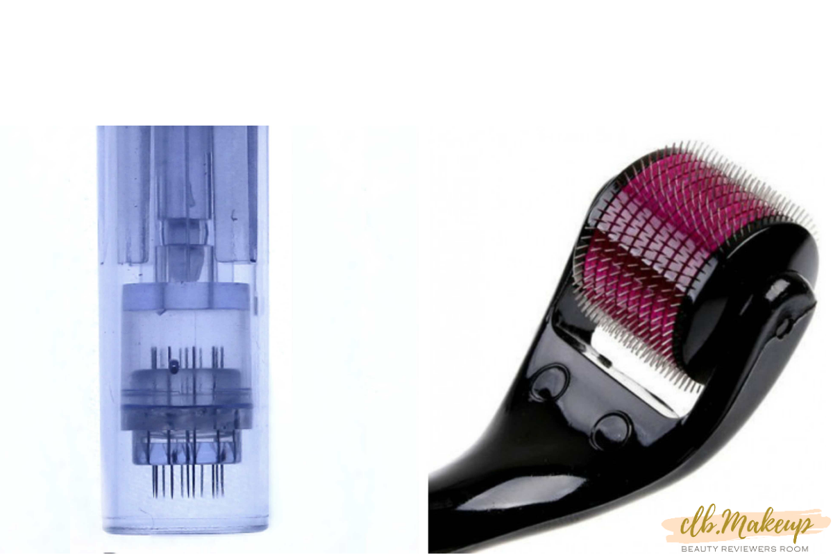 Lăn kim và phi kim là 2 phương pháp phổ biến điều trị sẹo rỗ